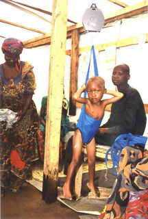 One of the mannourished children whose mother we incorporated into a family gardens project
