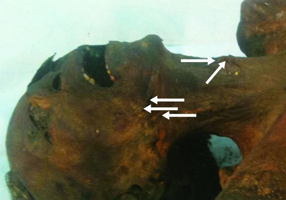 The mummy that might have been Ramesses III's son, Pentewere.  Arrows indicate stretch marks which may indicate hanging.  Source: BMJ livescience.com